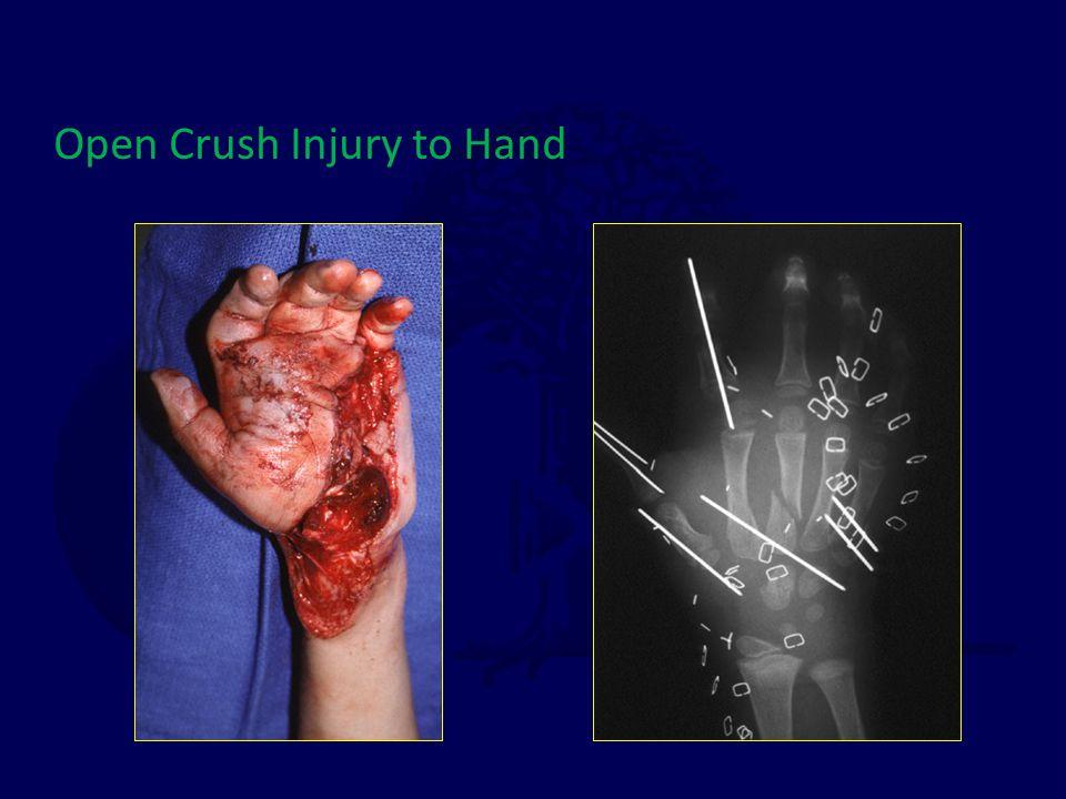 Open Crush Injury to Hand