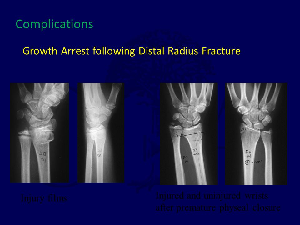 Growth Arrest following Distal Radius Fracture Injury films Injured and uninjured wrists after premature physeal closure Complications