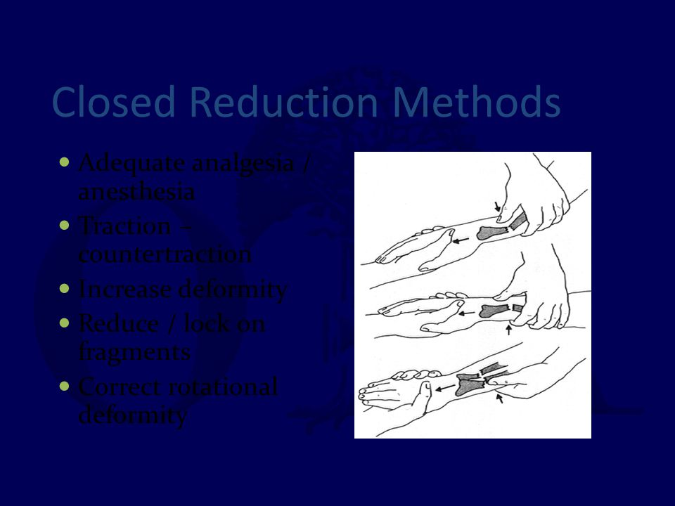 Closed Reduction Methods Adequate analgesia / anesthesia Traction – countertraction Increase deformity Reduce / lock on fragments Correct rotational d