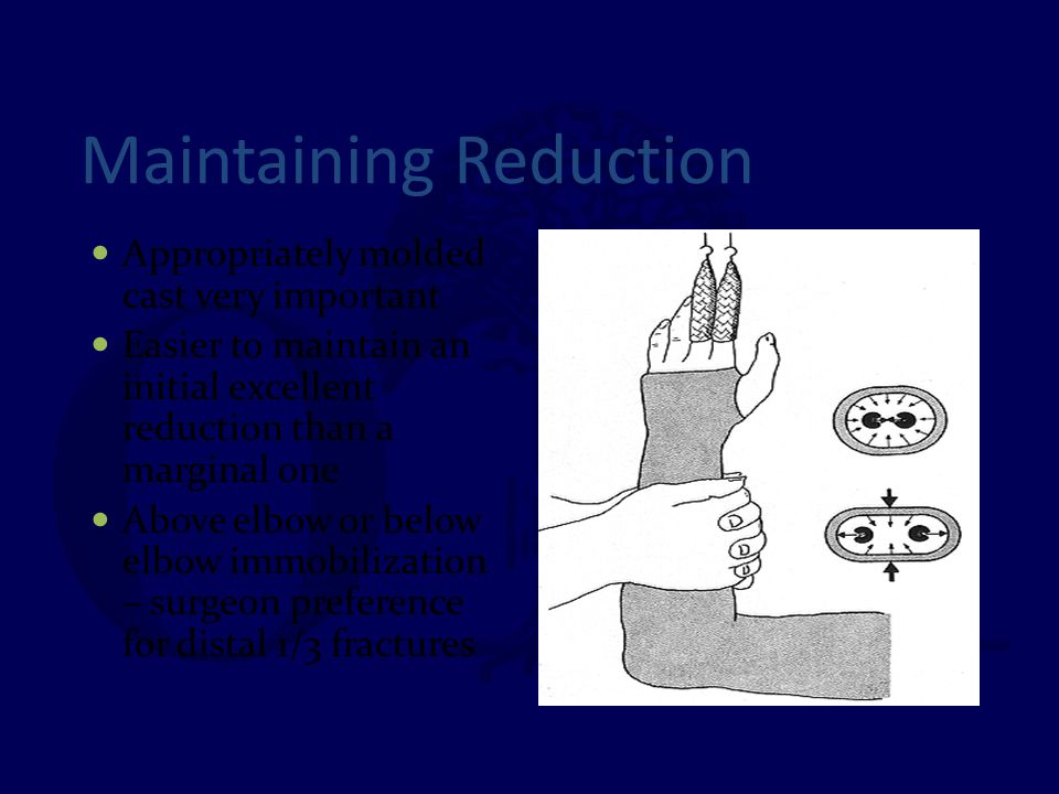 Maintaining Reduction Appropriately molded cast very important Easier to maintain an initial excellent reduction than a marginal one Above elbow or be