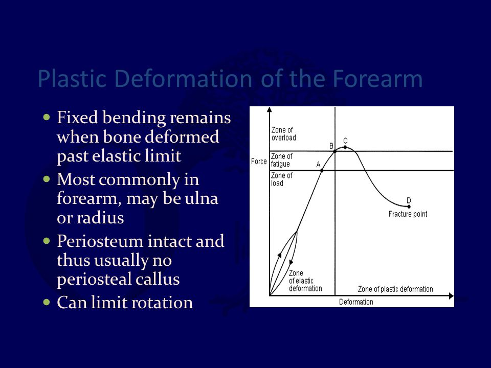 Plastic Deformation of the Forearm Fixed bending remains when bone deformed past elastic limit Most commonly in forearm, may be ulna or radius Periost