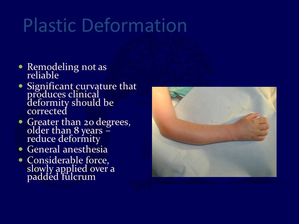 Plastic Deformation Remodeling not as reliable Significant curvature that produces clinical deformity should be corrected Greater than 20 degrees, old