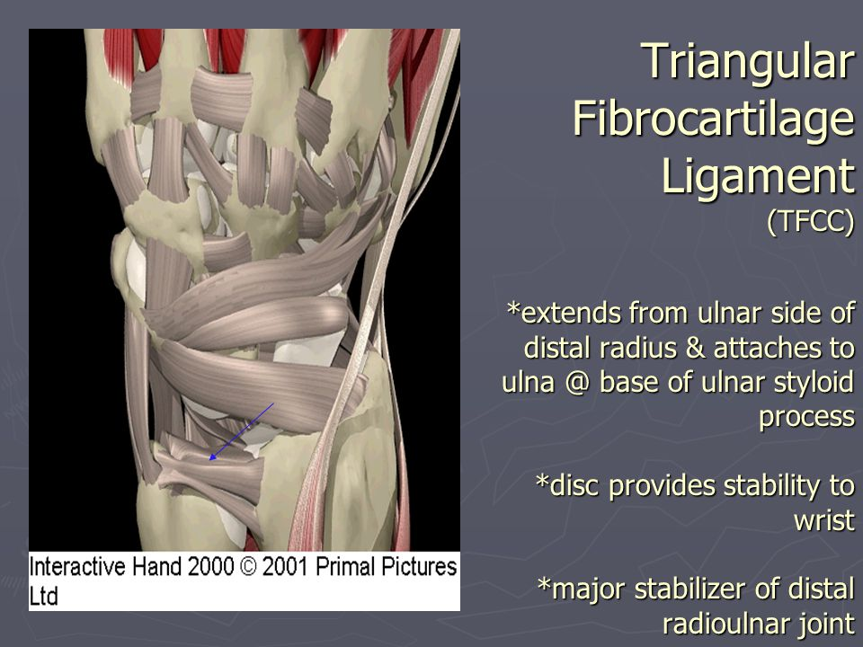 Triangular Fibrocartilage Ligament (TFCC) *extends from ulnar side of distal radius & attaches to ulna @ base of ulnar styloid process *disc provides