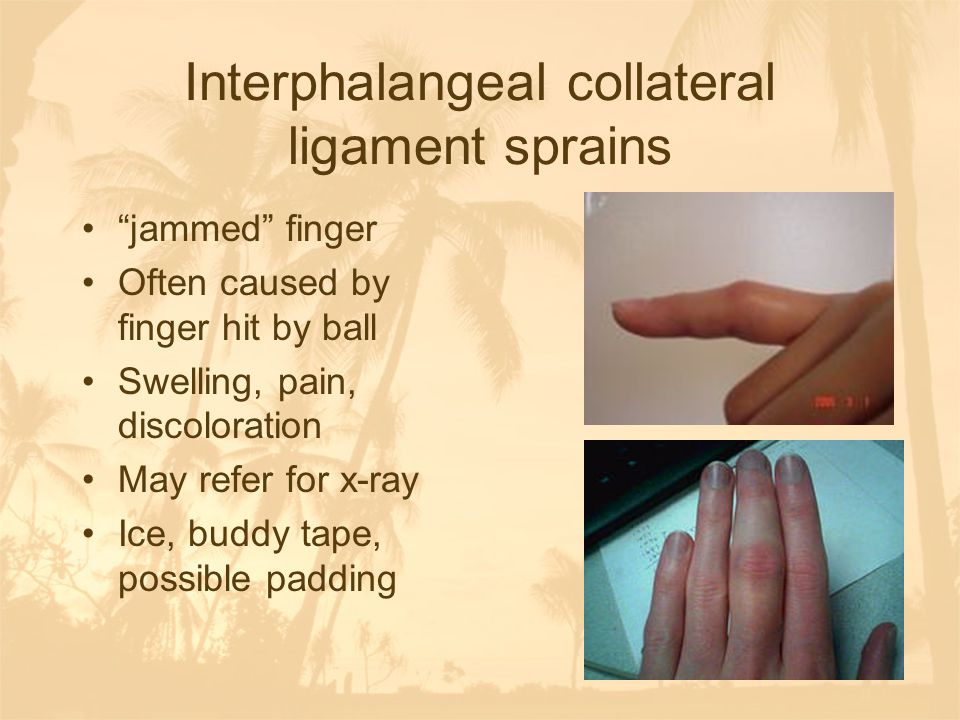 """Interphalangeal collateral ligament sprains """"jammed"""" finger Often caused by finger hit by ball Swelling, pain, discoloration May refer for x-ray Ice,"""