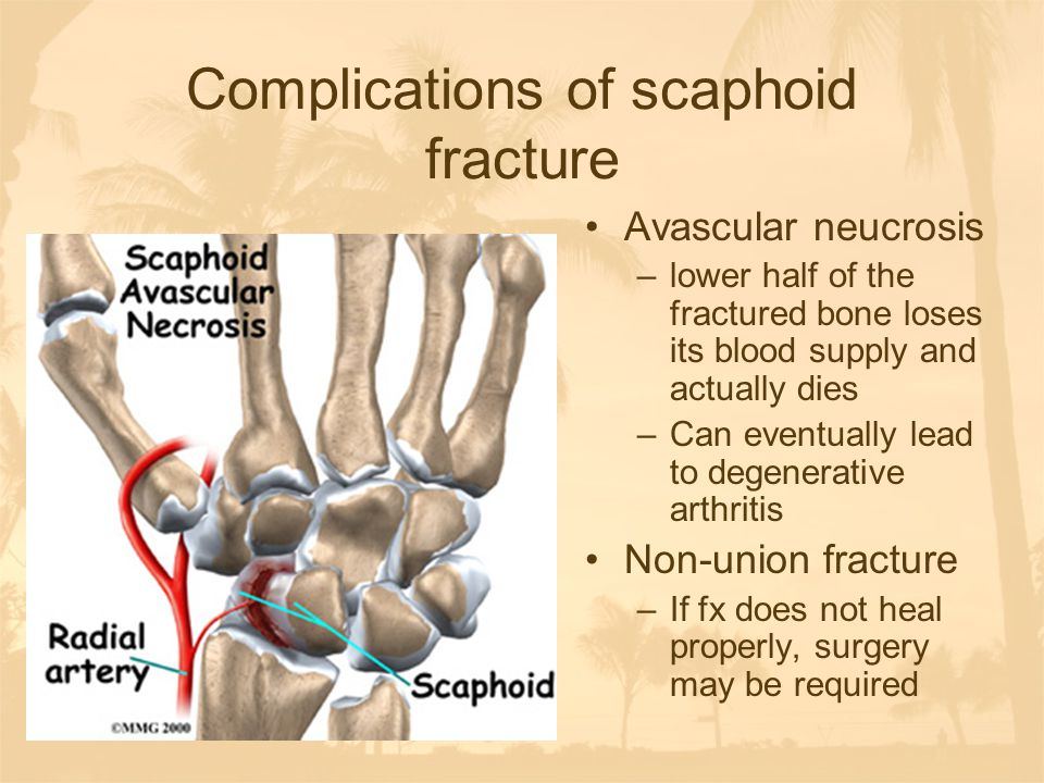 Complications of scaphoid fracture Avascular neucrosis –lower half of the fractured bone loses its blood supply and actually dies –Can eventually lead