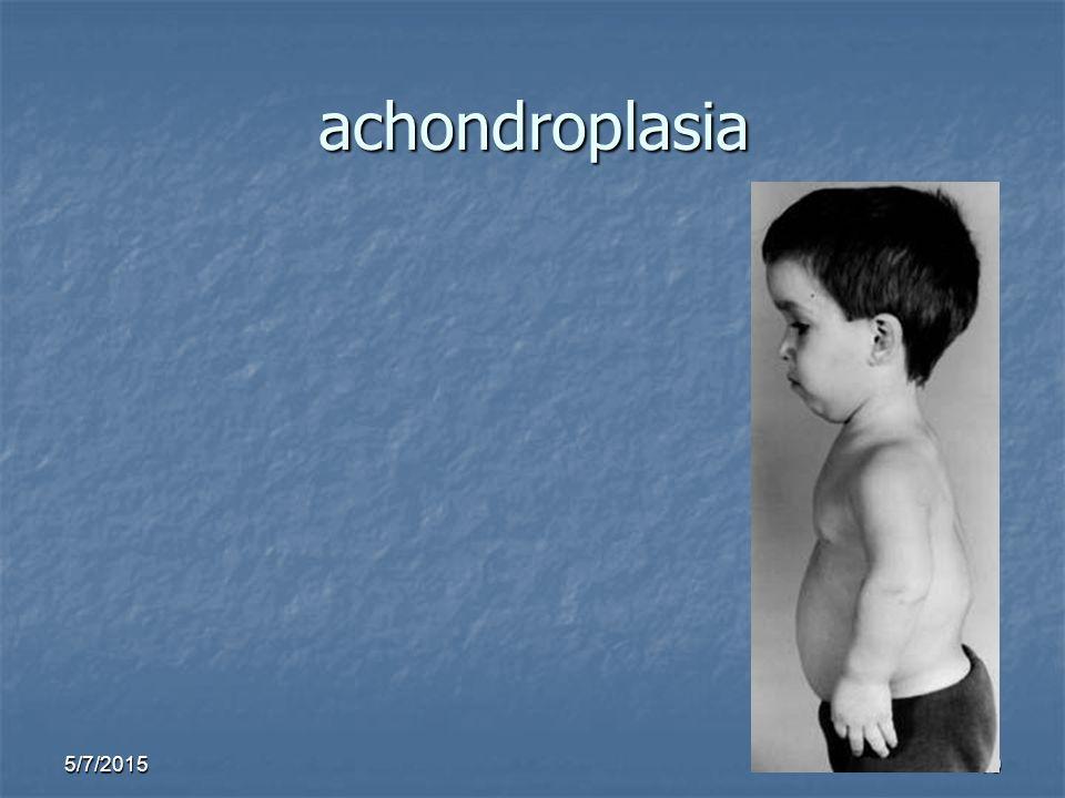 5/7/201510 achondroplasia