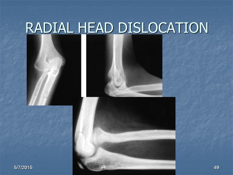 5/7/201549 RADIAL HEAD DISLOCATION