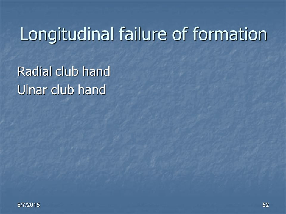 5/7/201552 Longitudinal failure of formation Radial club hand Ulnar club hand