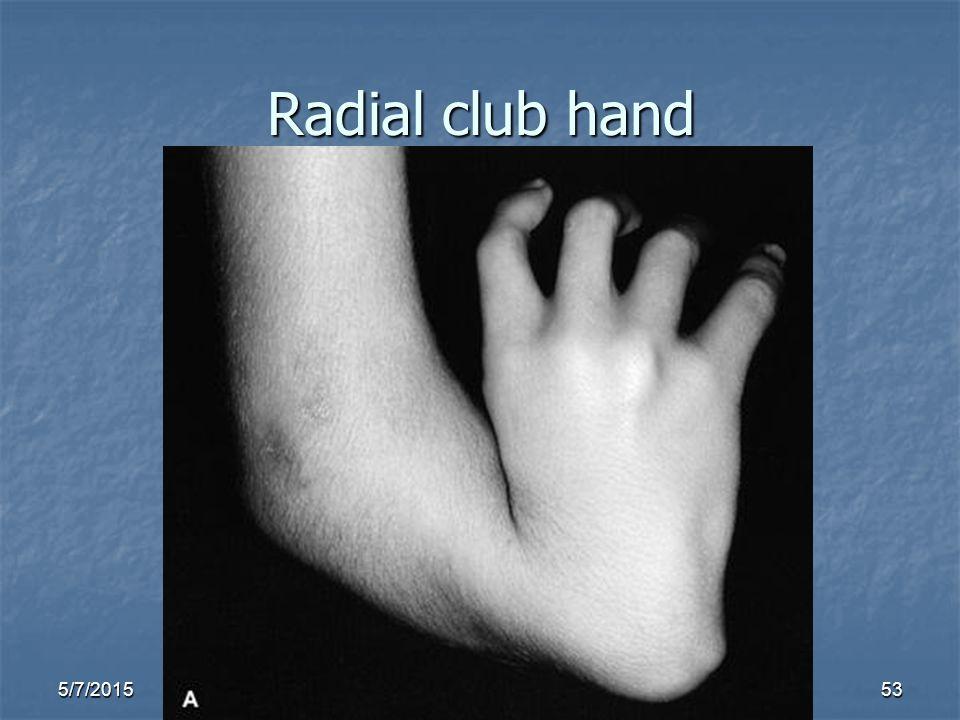 5/7/201553 Radial club hand