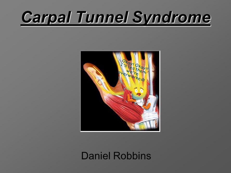 Carpal Tunnel Syndrome Daniel Robbins