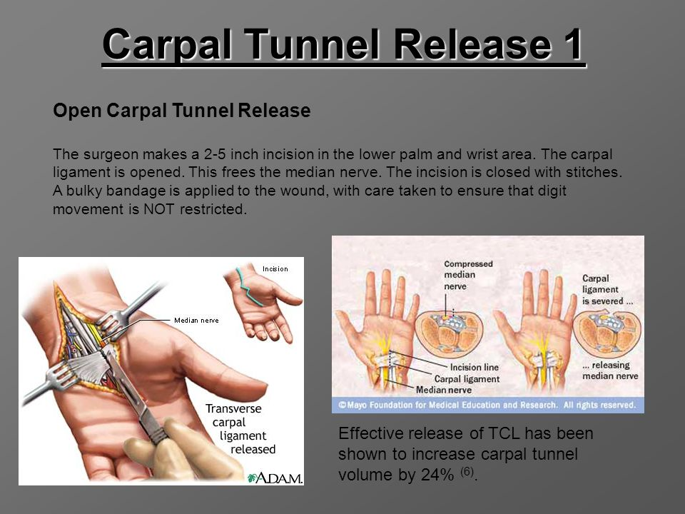 Carpal Tunnel Release 1 Open Carpal Tunnel Release The surgeon makes a 2-5 inch incision in the lower palm and wrist area. The carpal ligament is open
