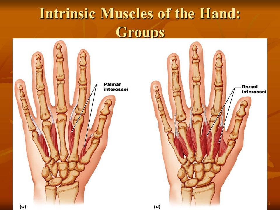 Intrinsic Muscles of the Hand: Groups Figure 10.18c, d