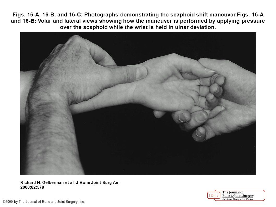Figs. 16-A, 16-B, and 16-C: Photographs demonstrating the scaphoid shift maneuver.Figs.