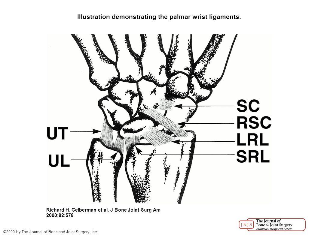 Illustration demonstrating the dorsal wrist ligaments.