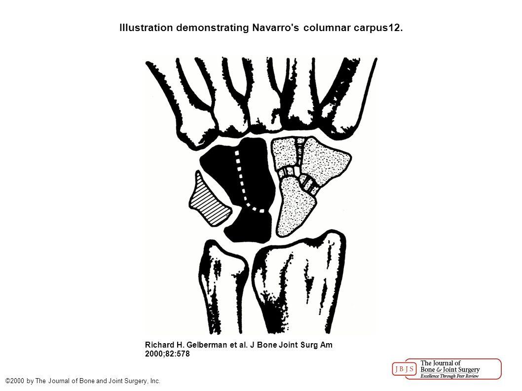 Illustration demonstrating Navarro s columnar carpus12.