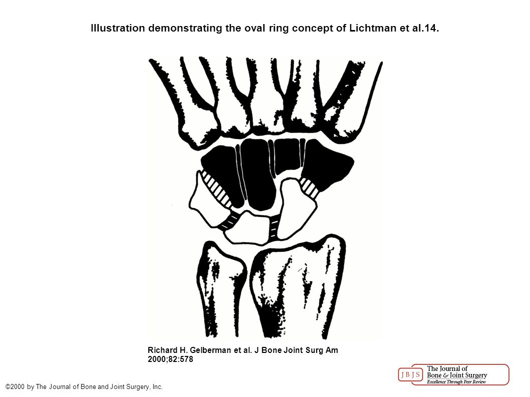 Gilford et al.described the wrist as a link joint (Fig.