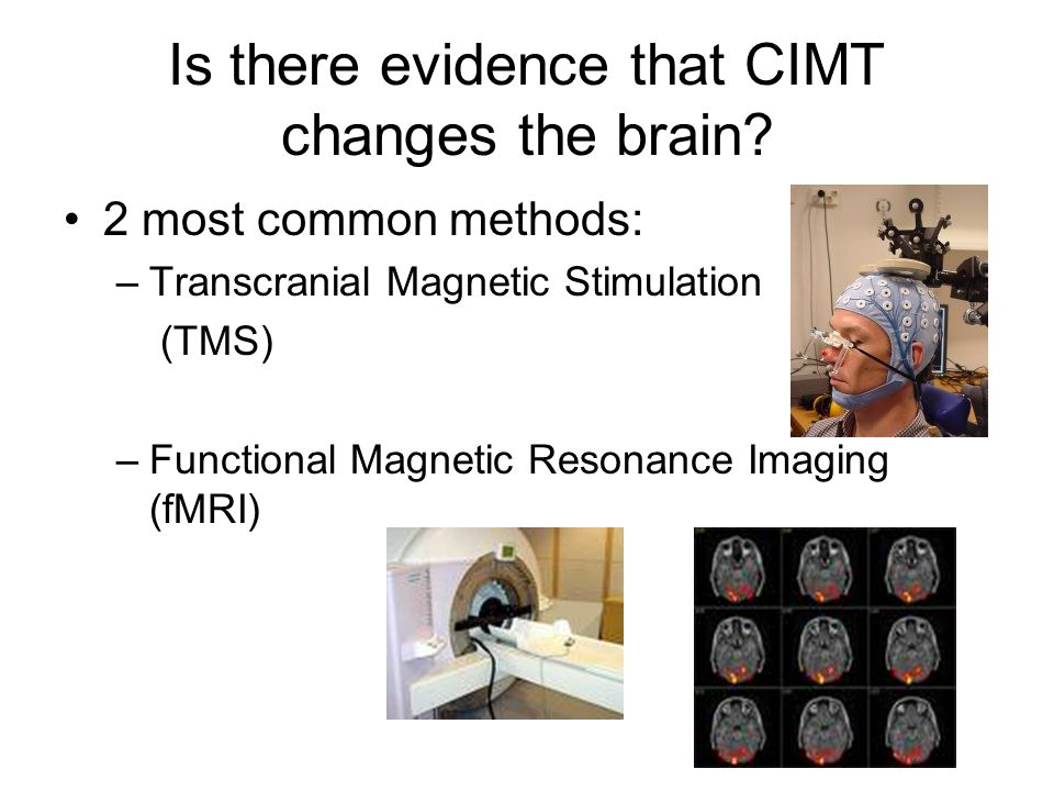 Is there evidence that CIMT changes the brain.