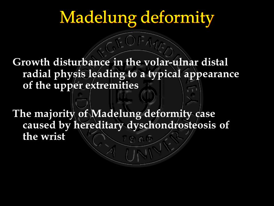 Madelung deformity Growth disturbance in the volar-ulnar distal radial physis leading to a typical appearance of the upper extremities The majority of Madelung deformity case caused by hereditary dyschondrosteosis of the wrist