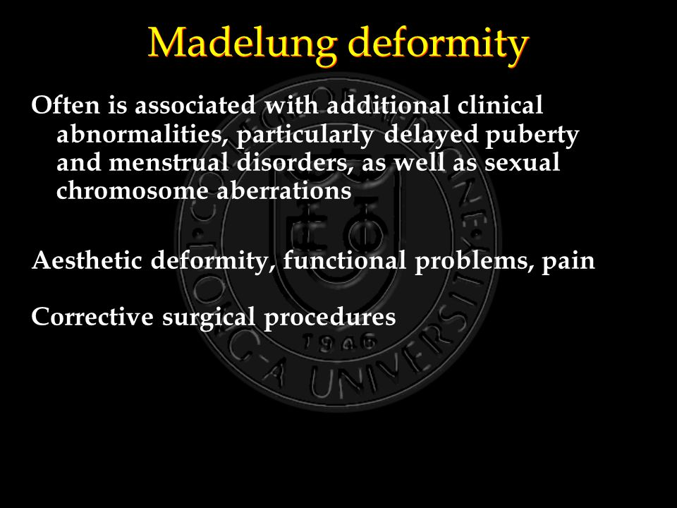 Madelung deformity Often is associated with additional clinical abnormalities, particularly delayed puberty and menstrual disorders, as well as sexual chromosome aberrations Aesthetic deformity, functional problems, pain Corrective surgical procedures
