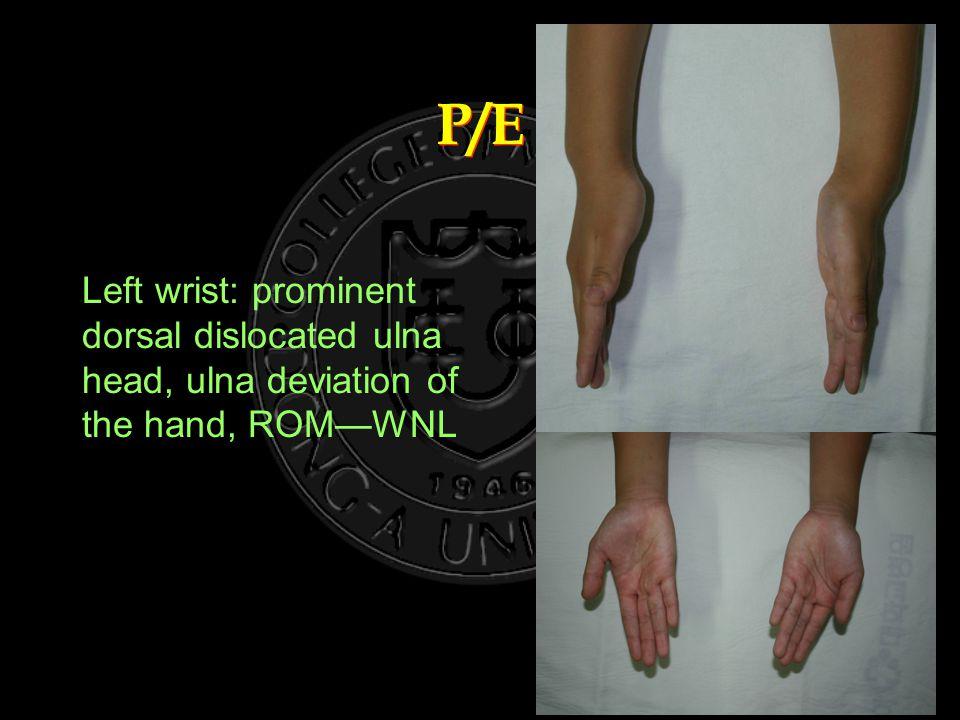 P/E Left wrist: prominent dorsal dislocated ulna head, ulna deviation of the hand, ROM—WNL