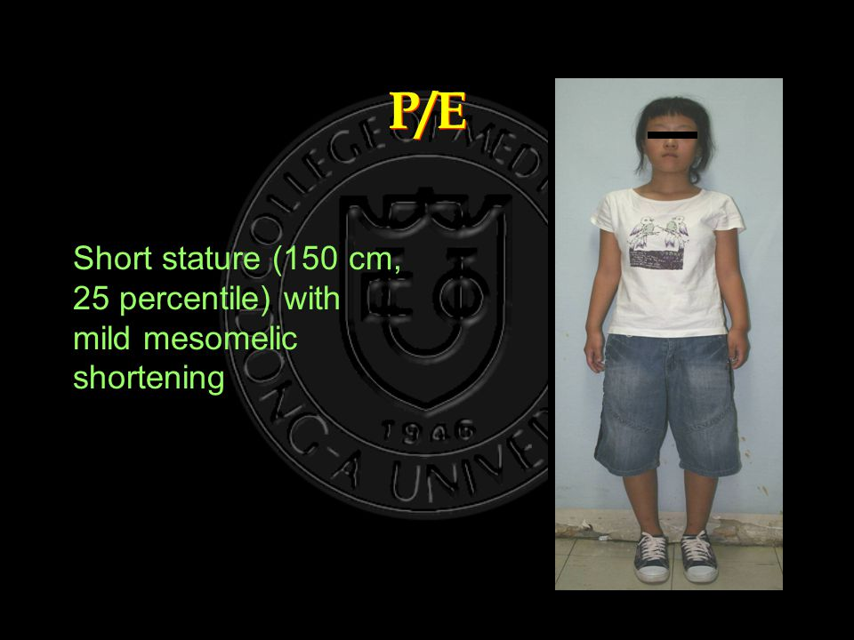 P/E Short stature (150 cm, 25 percentile) with mild mesomelic shortening