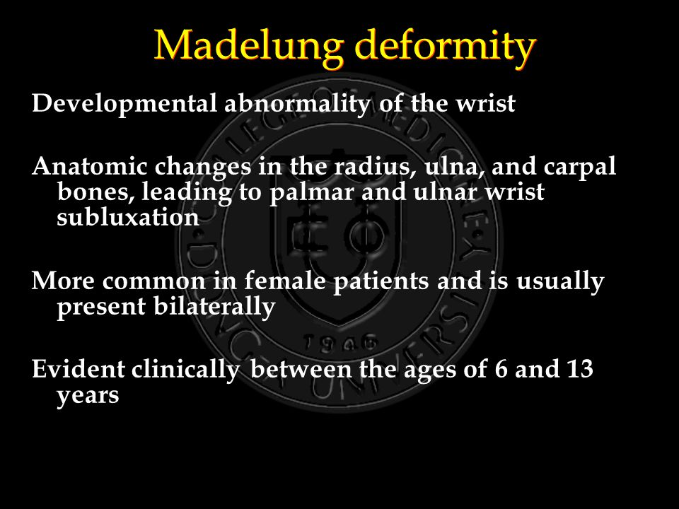 Madelung deformity Developmental abnormality of the wrist Anatomic changes in the radius, ulna, and carpal bones, leading to palmar and ulnar wrist subluxation More common in female patients and is usually present bilaterally Evident clinically between the ages of 6 and 13 years