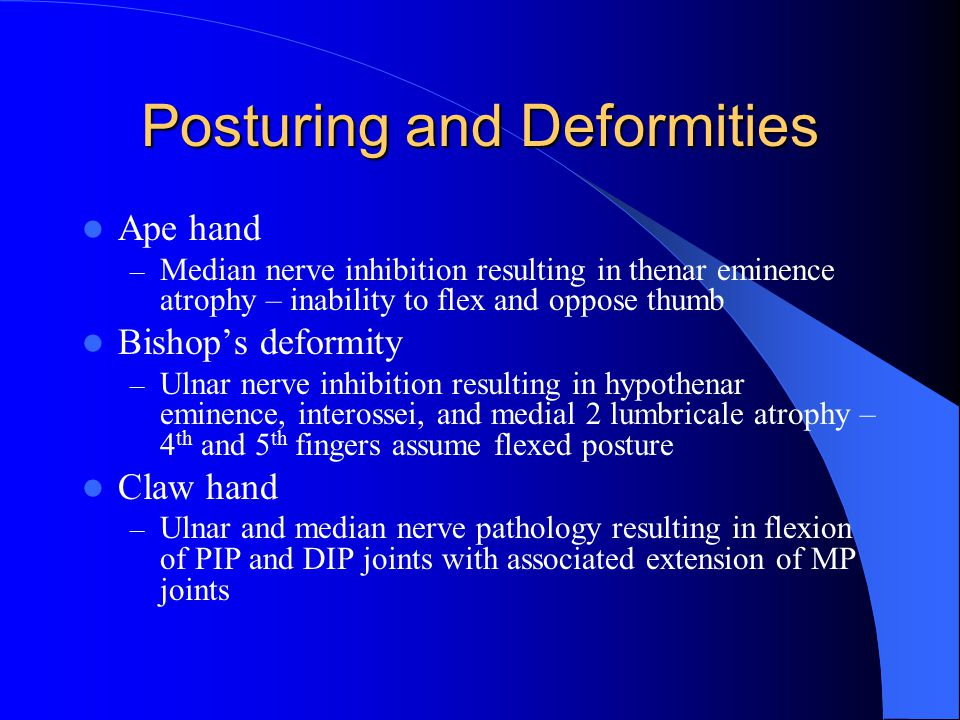 Posturing and Deformities Ape hand – Median nerve inhibition resulting in thenar eminence atrophy – inability to flex and oppose thumb Bishop's deformity – Ulnar nerve inhibition resulting in hypothenar eminence, interossei, and medial 2 lumbricale atrophy – 4 th and 5 th fingers assume flexed posture Claw hand – Ulnar and median nerve pathology resulting in flexion of PIP and DIP joints with associated extension of MP joints