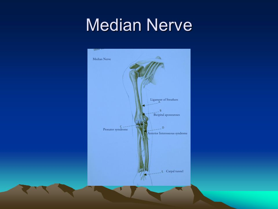 Carpal Tunnel Syndrome : Etiology CT- a natural bottleneck in the course of median nerve.