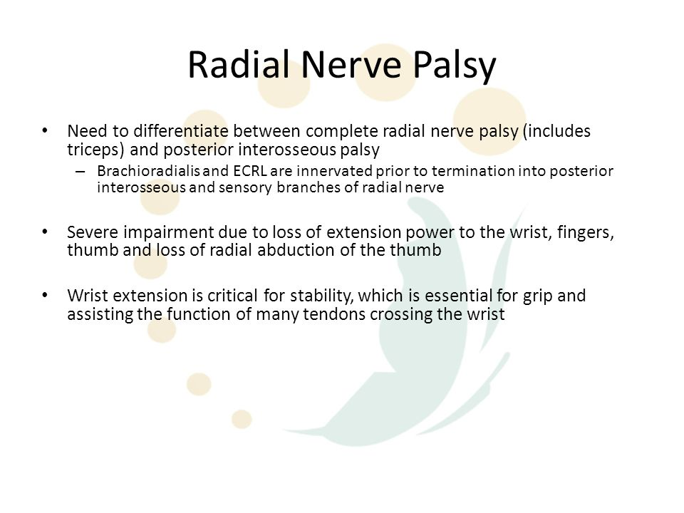 Radial Nerve Palsy Need to differentiate between complete radial nerve palsy (includes triceps) and posterior interosseous palsy – Brachioradialis and