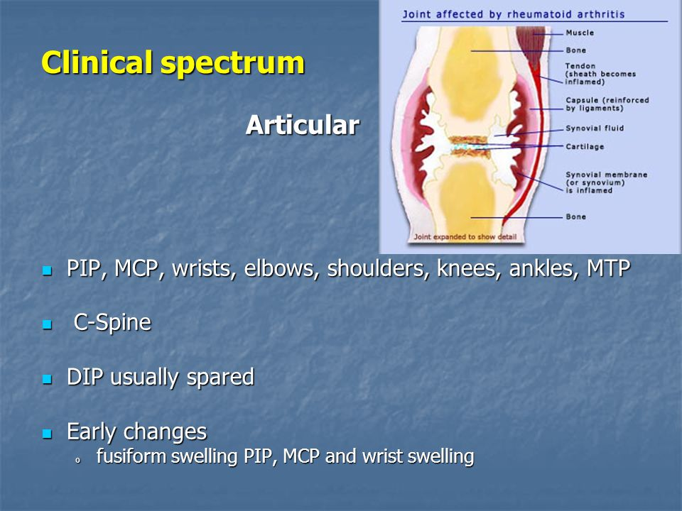 Clinical spectrum Articular PIP, MCP, wrists, elbows, shoulders, knees, ankles, MTP PIP, MCP, wrists, elbows, shoulders, knees, ankles, MTP C-Spine C-