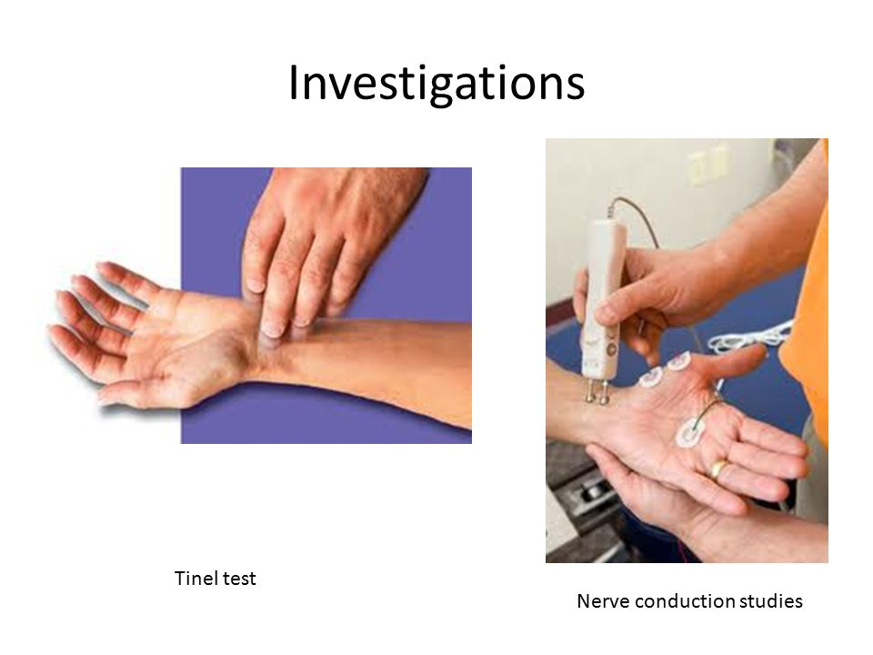 Investigations Tinel test Nerve conduction studies
