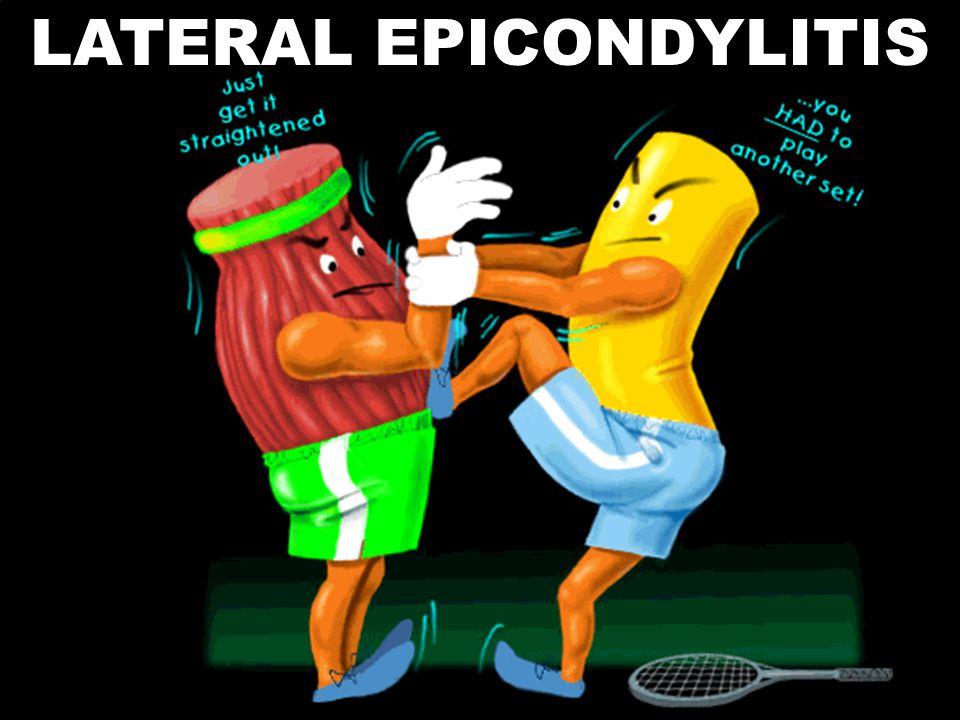 LATERAL EPICONDYLITIS
