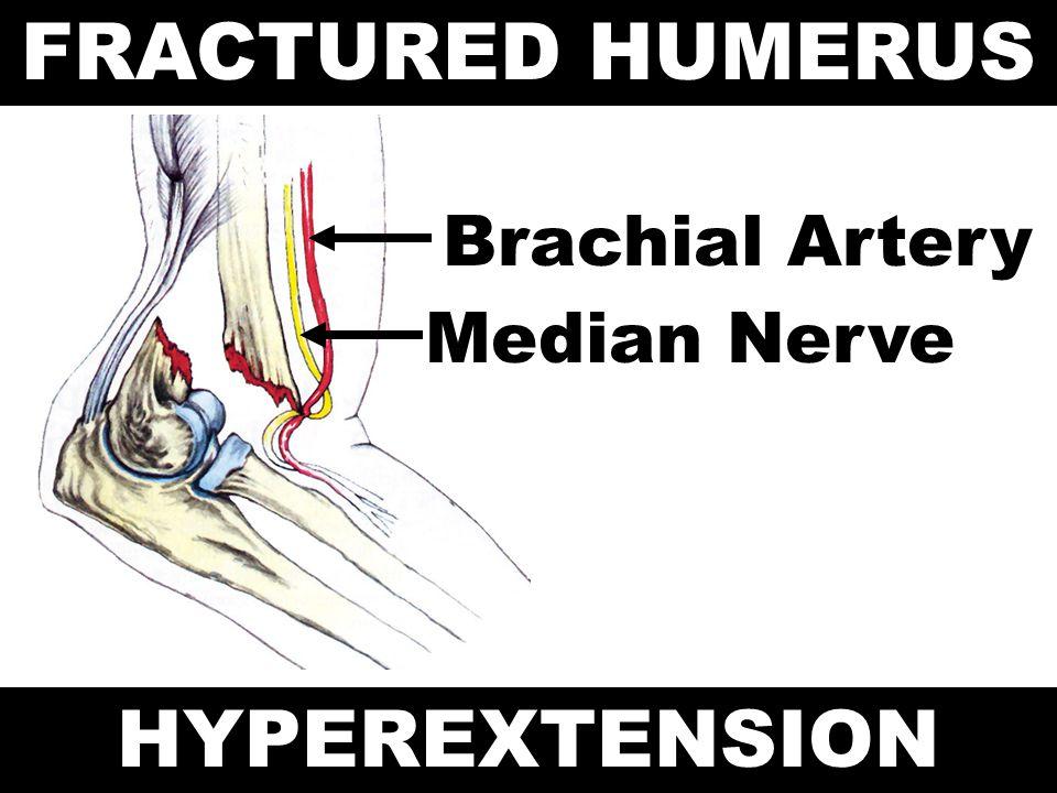FRACTURED HUMERUS HYPEREXTENSION Brachial Artery Median Nerve