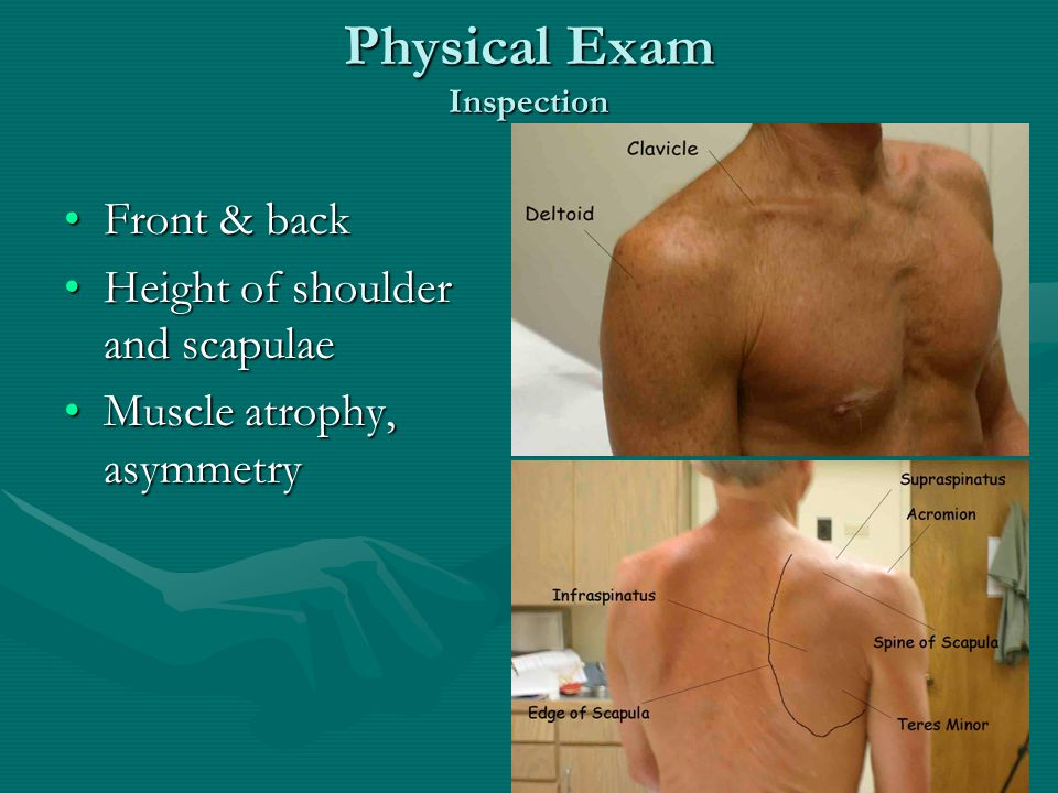 Physical Exam Inspection Front & backFront & back Height of shoulder and scapulaeHeight of shoulder and scapulae Muscle atrophy, asymmetryMuscle atrophy, asymmetry