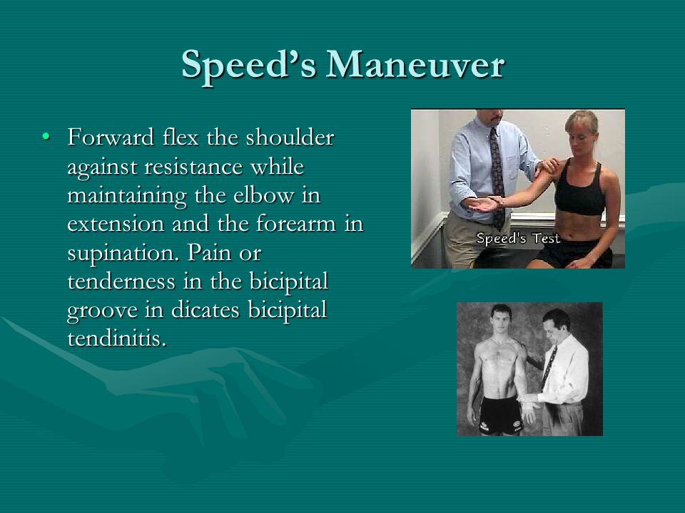 Speed's Maneuver Forward flex the shoulder against resistance while maintaining the elbow in extension and the forearm in supination.