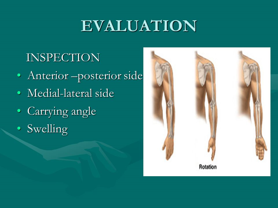 EVALUATION INSPECTION INSPECTION Anterior –posterior sideAnterior –posterior side Medial-lateral sideMedial-lateral side Carrying angleCarrying angle SwellingSwelling