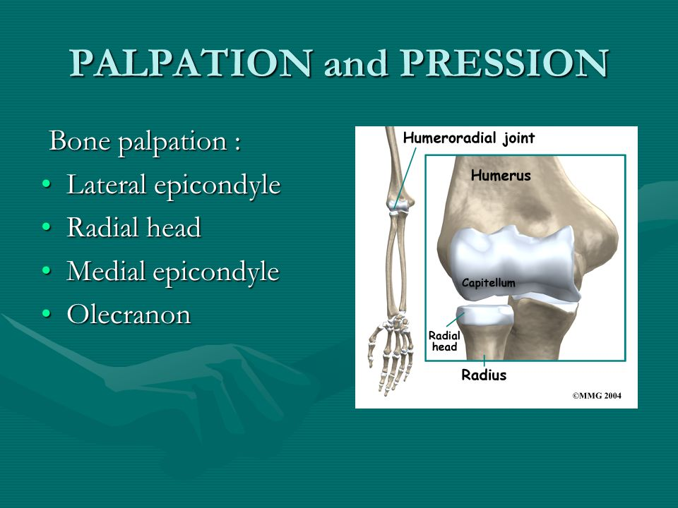 PALPATION and PRESSION Bone palpation : Bone palpation : Lateral epicondyleLateral epicondyle Radial headRadial head Medial epicondyleMedial epicondyle OlecranonOlecranon