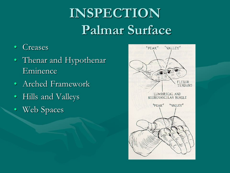 INSPECTION Palmar Surface CreasesCreases Thenar and Hypothenar EminenceThenar and Hypothenar Eminence Arched FrameworkArched Framework Hills and ValleysHills and Valleys Web SpacesWeb Spaces