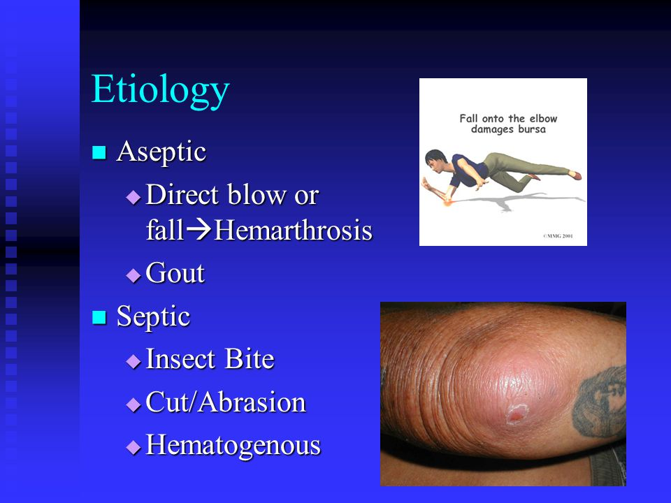 Etiology Aseptic Aseptic  Direct blow or fall  Hemarthrosis  Gout Septic Septic  Insect Bite  Cut/Abrasion  Hematogenous