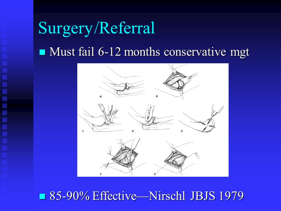 Surgery/Referral Must fail 6-12 months conservative mgt Must fail 6-12 months conservative mgt 85-90% Effective—Nirschl JBJS 1979 85-90% Effective—Nirschl JBJS 1979