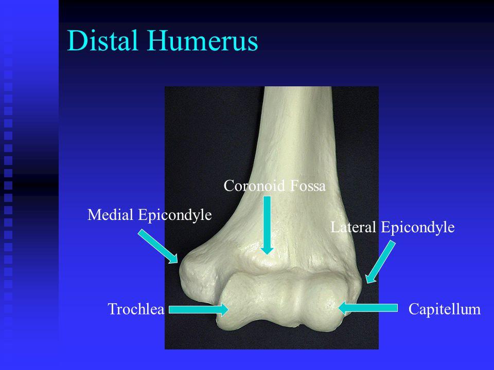 Distal Humerus Medial Epicondyle Lateral Epicondyle Trochlea Capitellum Coronoid Fossa
