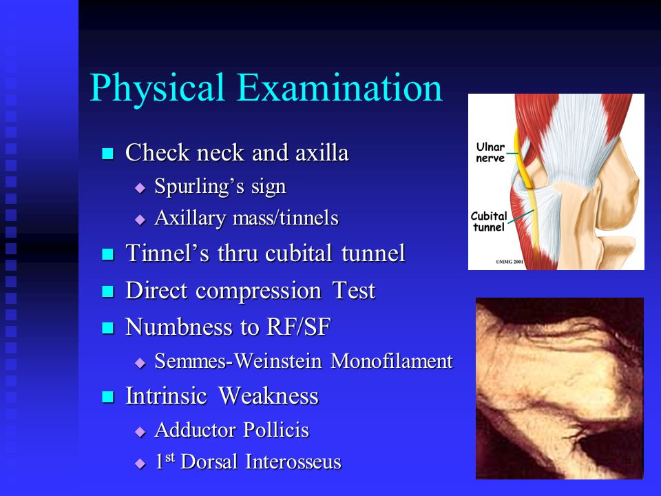 Physical Examination Check neck and axilla  Spurling's sign  Axillary mass/tinnels Tinnel's thru cubital tunnel Direct compression Test Numbness to RF/SF  Semmes-Weinstein Monofilament Intrinsic Weakness  Adductor Pollicis  1 st Dorsal Interosseus