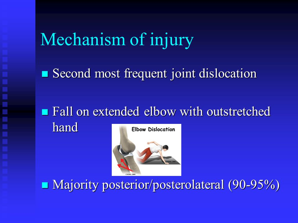 Mechanism of injury Second most frequent joint dislocation Second most frequent joint dislocation Fall on extended elbow with outstretched hand Fall on extended elbow with outstretched hand Majority posterior/posterolateral (90-95%) Majority posterior/posterolateral (90-95%)