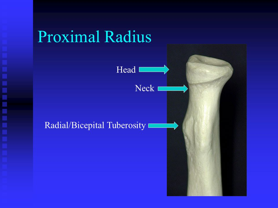 Proximal Radius Head Neck Radial/Bicepital Tuberosity