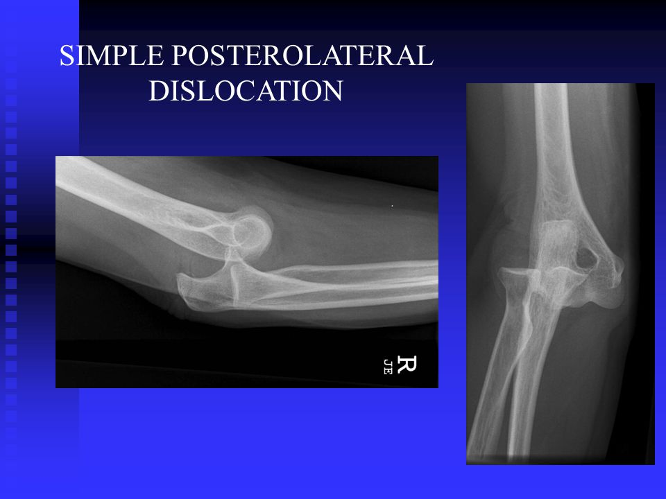 SIMPLE POSTEROLATERAL DISLOCATION