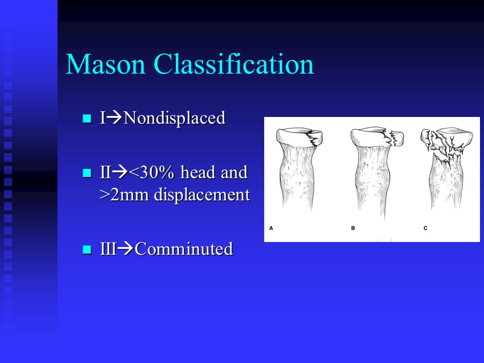 Mason Classification I  Nondisplaced II  2mm displacement III  Comminuted
