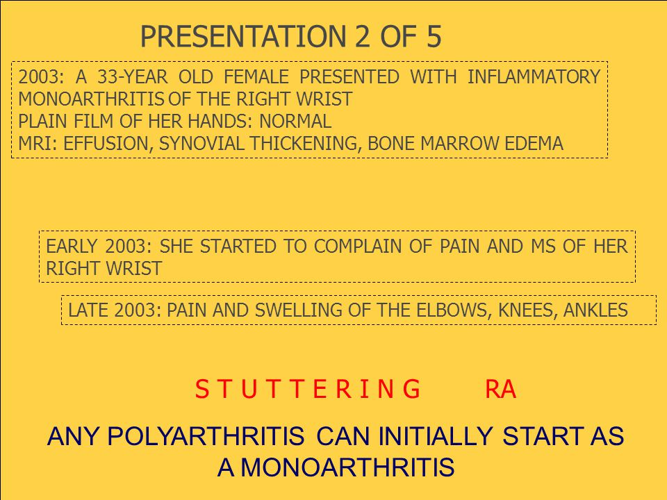 2003: A 33-YEAR OLD FEMALE PRESENTED WITH INFLAMMATORY MONOARTHRITIS OF THE RIGHT WRIST PLAIN FILM OF HER HANDS: NORMAL MRI: EFFUSION, SYNOVIAL THICKENING, BONE MARROW EDEMA EARLY 2003: SHE STARTED TO COMPLAIN OF PAIN AND MS OF HER RIGHT WRIST S T U T T E R I N G RA LATE 2003: PAIN AND SWELLING OF THE ELBOWS, KNEES, ANKLES ANY POLYARTHRITIS CAN INITIALLY START AS A MONOARTHRITIS PRESENTATION 2 OF 5