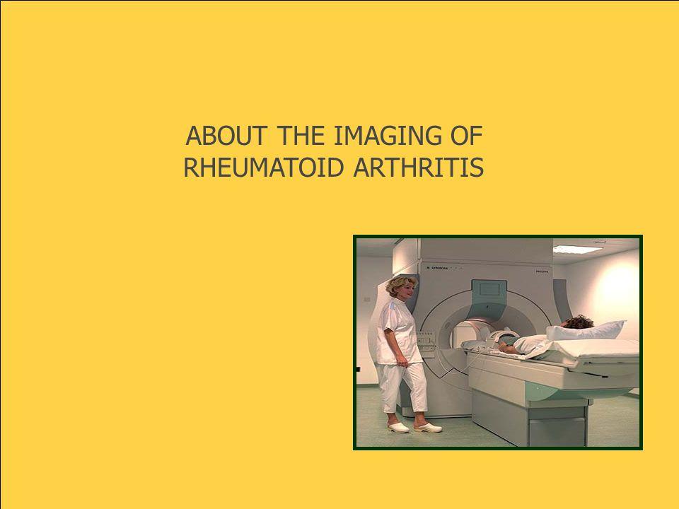 ABOUT THE IMAGING OF RHEUMATOID ARTHRITIS