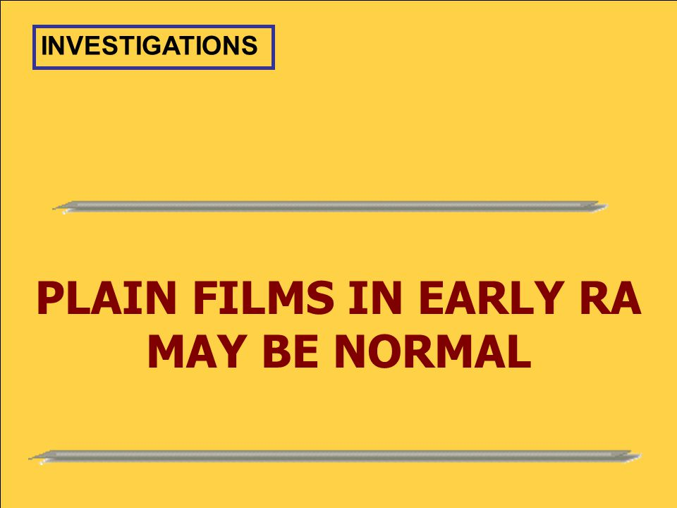 PLAIN FILMS IN EARLY RA MAY BE NORMAL INVESTIGATIONS
