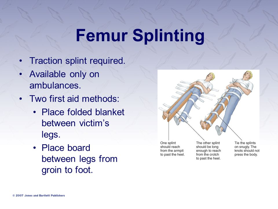Femur Splinting Traction splint required. Available only on ambulances.